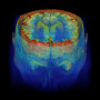Image created by stacking DICOM MRI images.       NYTCREDIT: Zach Wise for The New York Times